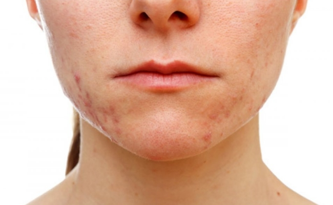Acne in lower part of cheek