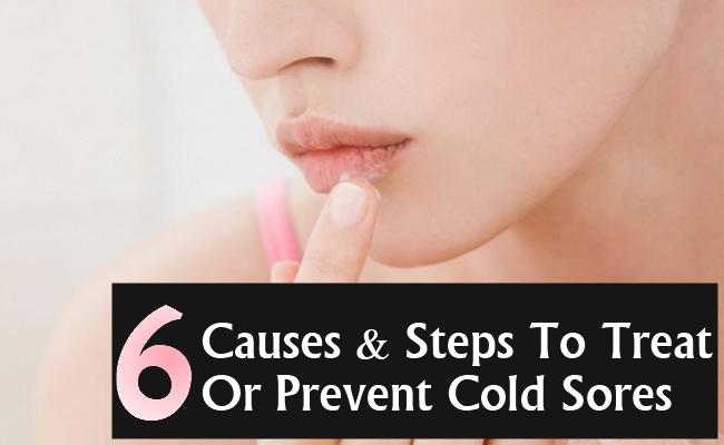 Causes And Steps To Treat Or Prevent Cold Sores In Women