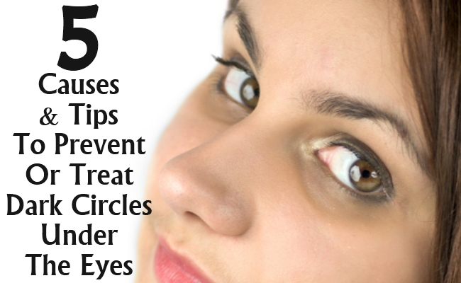 5 Causes And Tips To Prevent Or Treat Dark Circles Under ...