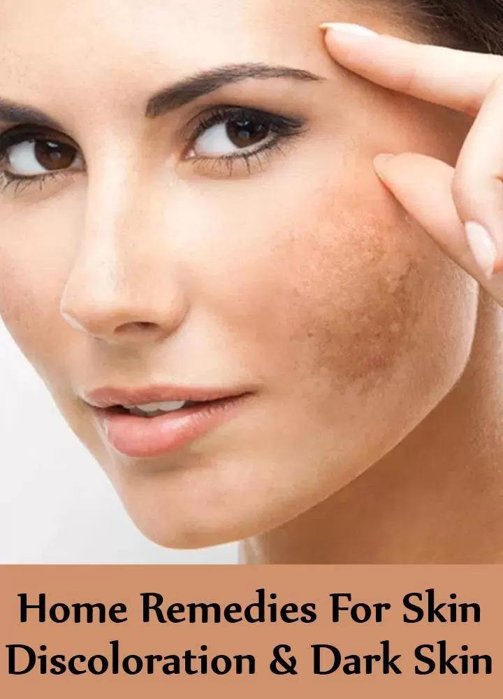 Home Remedies For Skin Discoloration And Dark Skin