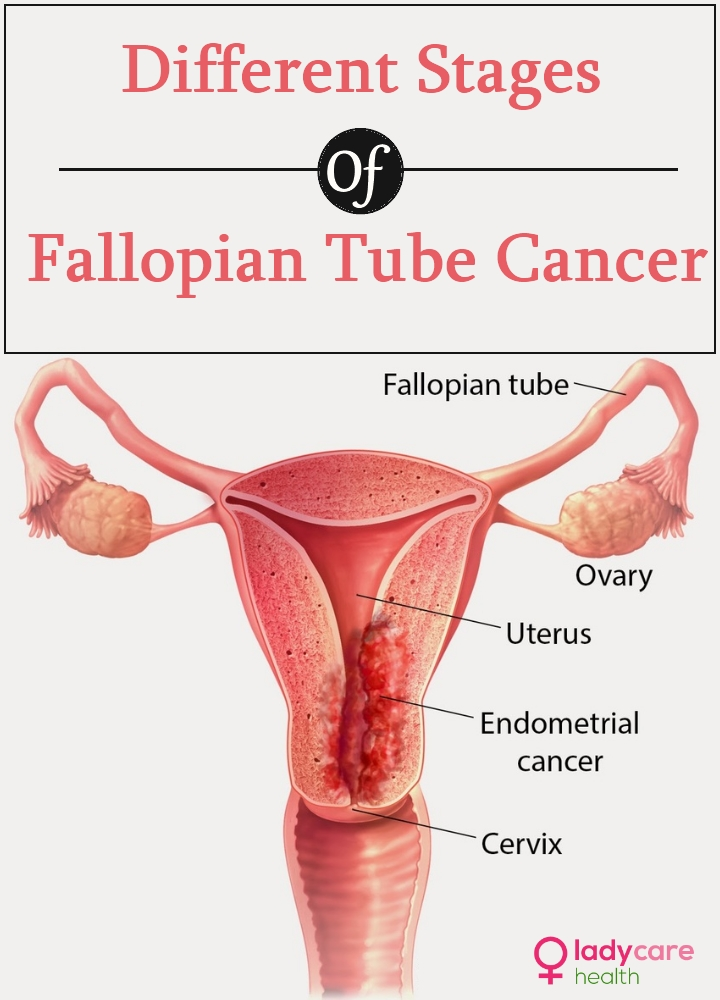 Different Stages Of Fallopian Tube Cancer