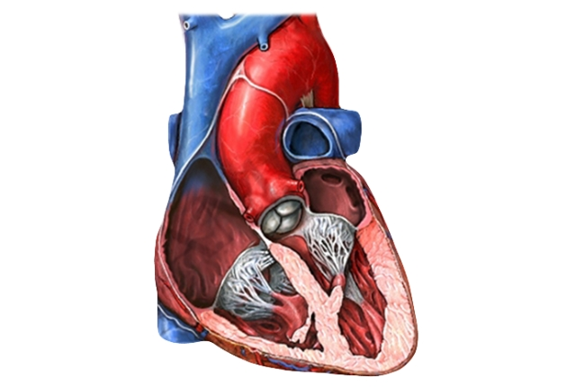 Defective Aortic Valve