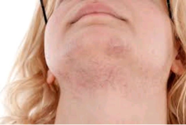 Excess growth of androgens