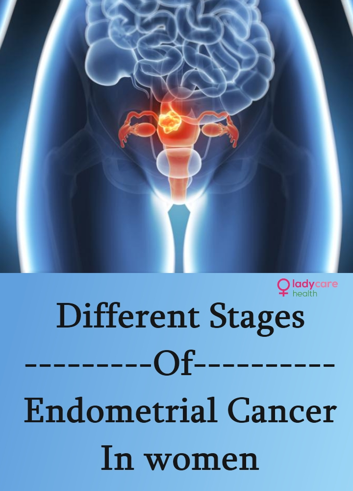 Stages Of Endometrial Cancer In women