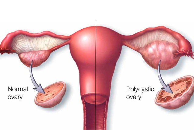 7 Possible Reasons For An Enlarged Uterus | Lady Care Health