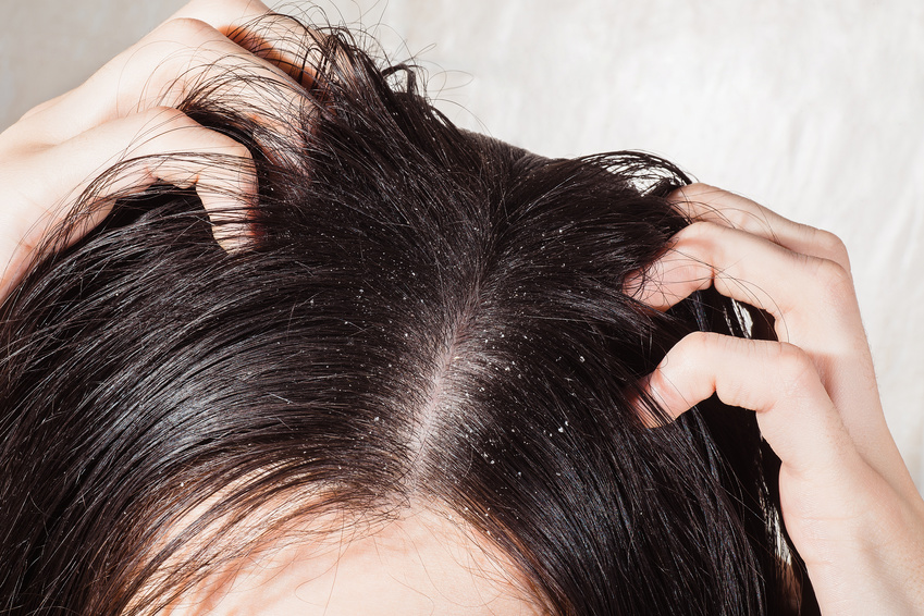 Got an Itchy Scalp? Those Flakes Might Not Be Dandruff After All