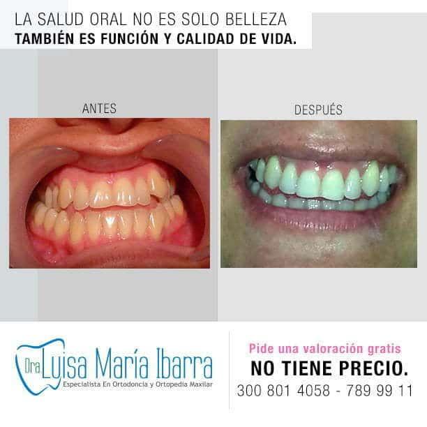 odontólogos ortodoncia ortodoncistas en monteria