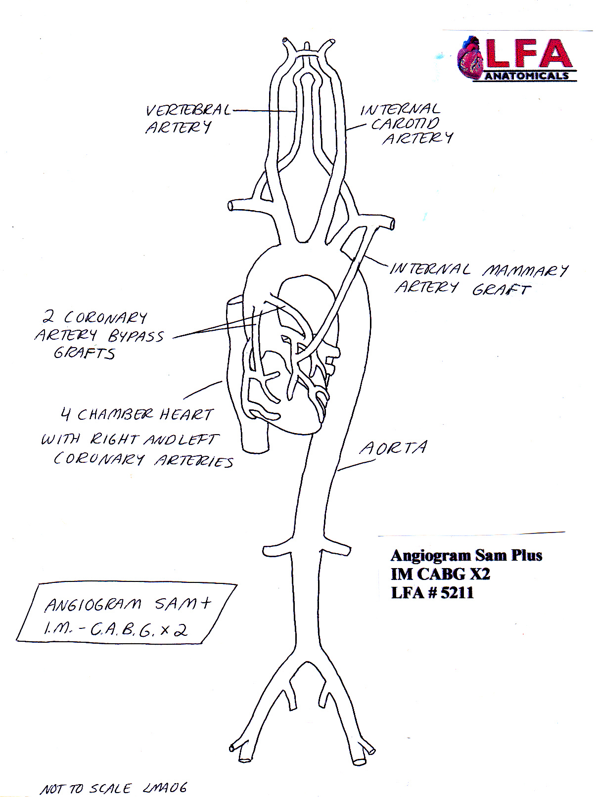 Fetal Artery Diagram