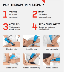 shockwave-therapy-lakky-physiotherapy