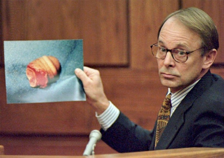 La parte del pene mostrado durante el juicio.