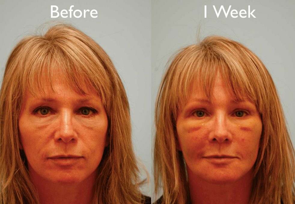 Face Swelling After Fat Transfer
