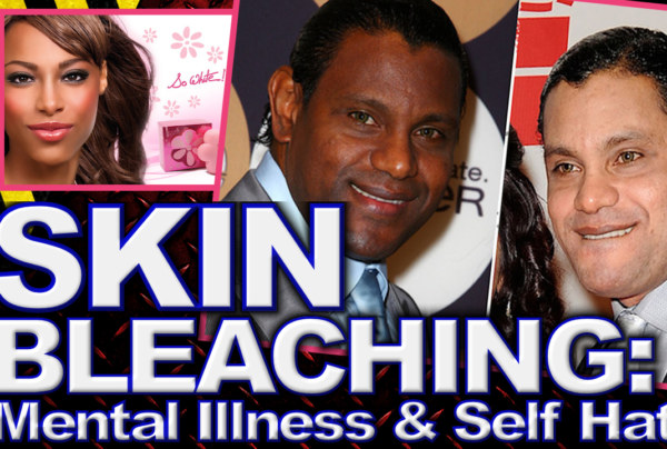 Skin Bleaching: Mental Illness & Self Hate! – The LanceScurv Show