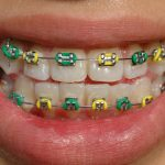 How To Choose Colors For Braces Knoxville Braces Dr Langford