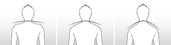 Profil des epaules