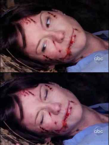 Lexie Grey muore Grey's Anatomy 8