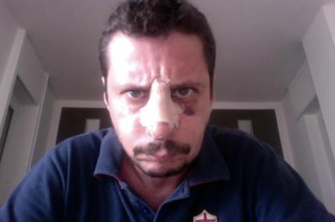 Luca Bizzarri col volto tumefatto su twitter
