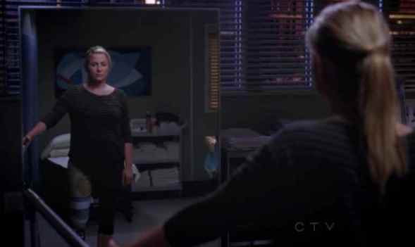 greys-anatomy-9x04-arizona-robbins-protesi-foto
