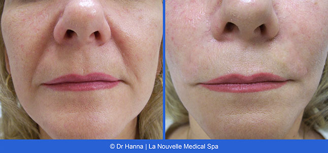 Radiesse And Juvederm Before And After Photos Ventura