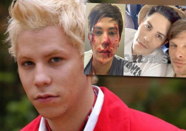 AF9F4B43 86D4 48C5 B7A3 0FE84D653CC2 - Ex RBD Christian Chávez encerró, golpeó y le partió una botella en la cabeza a su novio estando drogado