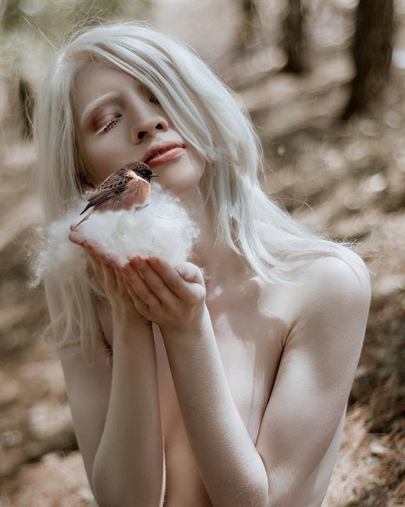 af36be8242d8611600a465aceba0c649cf94585fminiw - Ruby Vizcarra, la modelo albina que aprendió a abrazar su condición