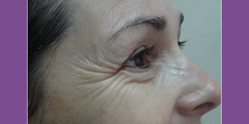 Before-Crows Feet