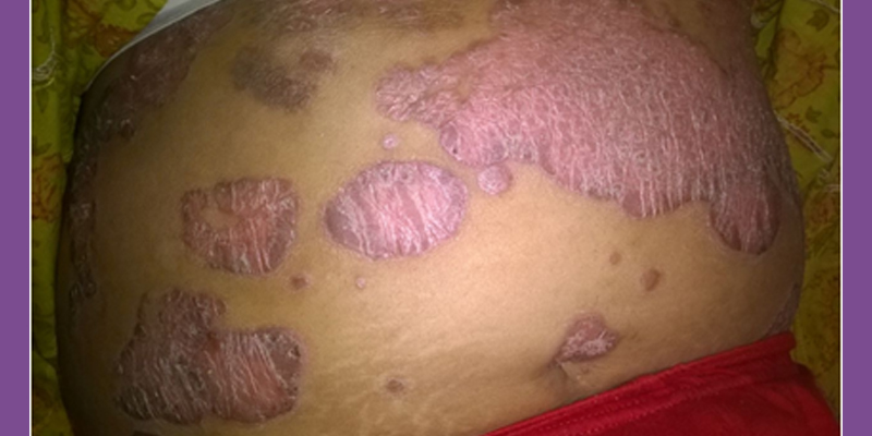 Before-Psoriasis Treatment