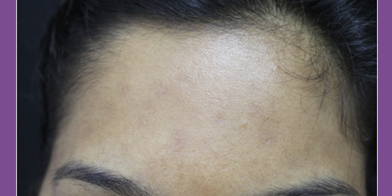 After-Superficial Skin Resurfacing