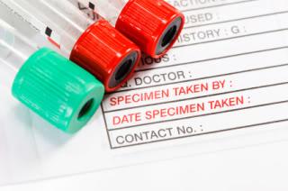 TSH blood test.