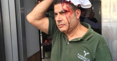 Napoli: Immigrato rompe la testa ad un farmacista