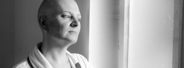 الاثار النفسية المترتبة على فقدان الشعر