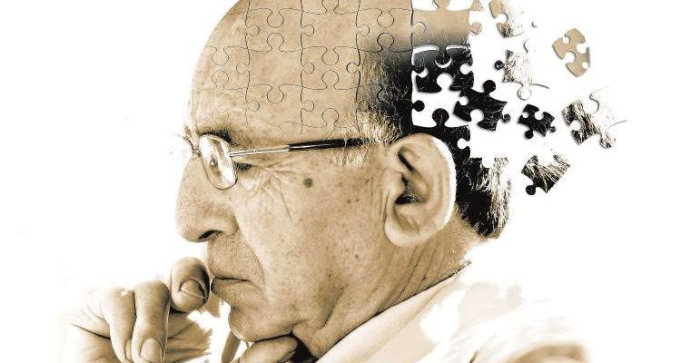 Ύπνος το μεσημέρι: Πότε μπορεί να είναι προάγγελος της νόσου Αλτσχάιμερ