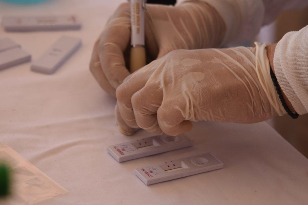 Που θα γίνουν σήμερα Σάββατο δωρεάν rapid tests στη Λάρισα