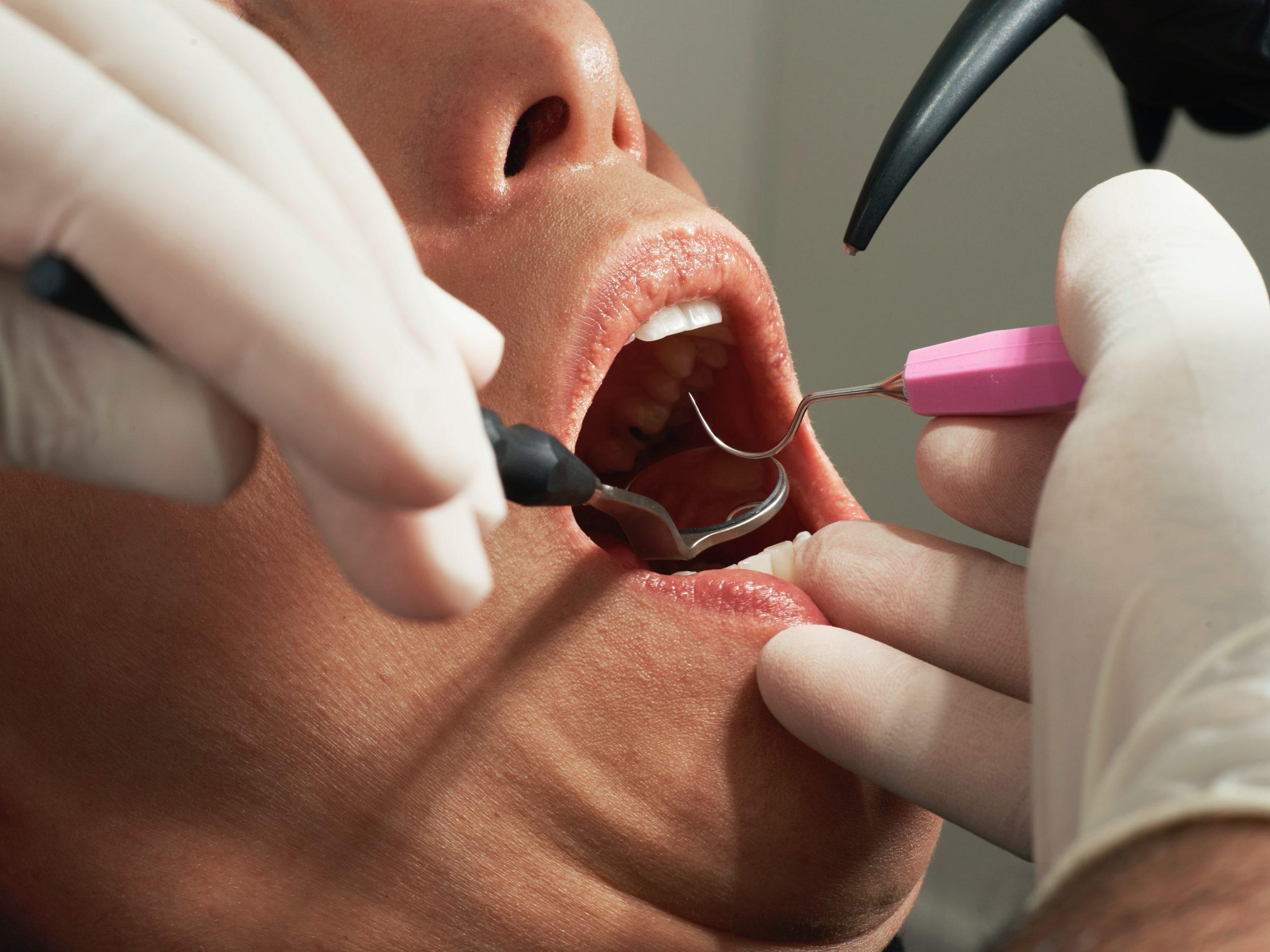 «Διάχυτη αγανάκτηση» των οδοντιάτρων: Rapid test για εμβολιασμένους – Αρνητικό μοριακό για τους ανεμβολίαστους (video)