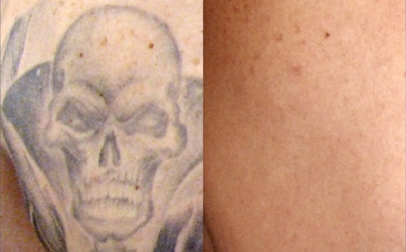 Tattoo Removal: Worth It? | Wheaton Laser Tattoo Removal