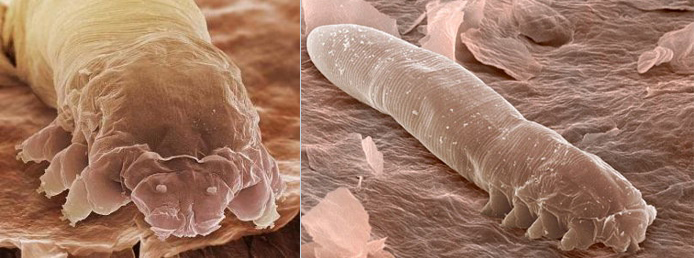 demodex-kleshch