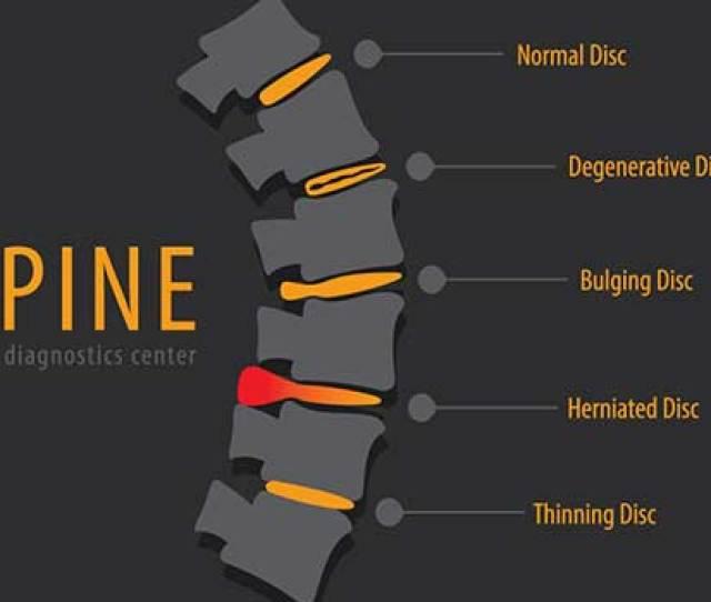 Herniated Disc Healing Tips In Los Angeles Ca
