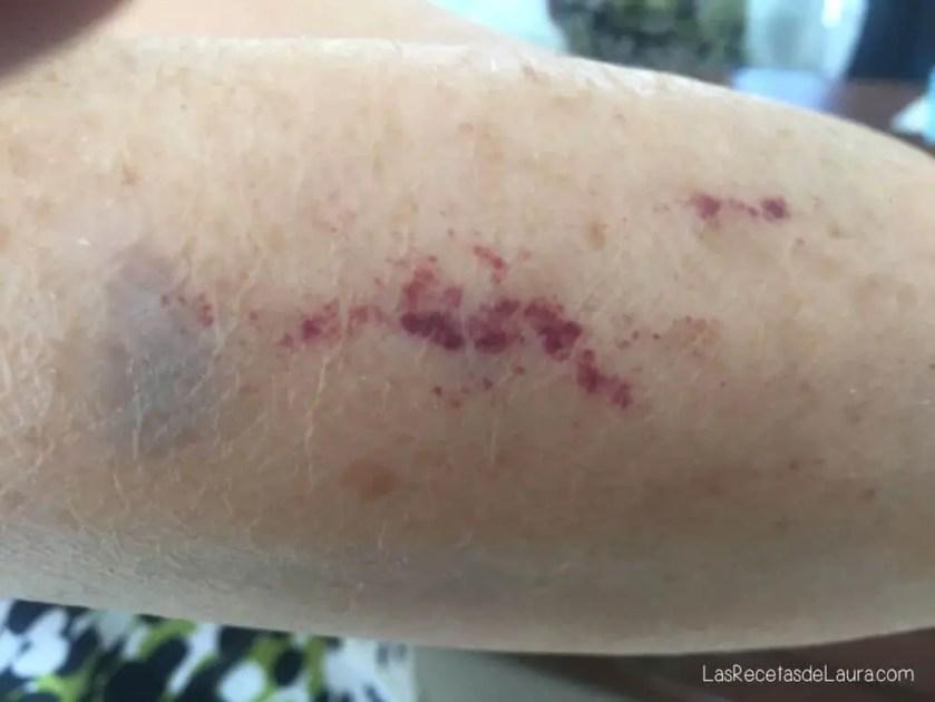 plaquetas bajas despues de la vacuna del covid
