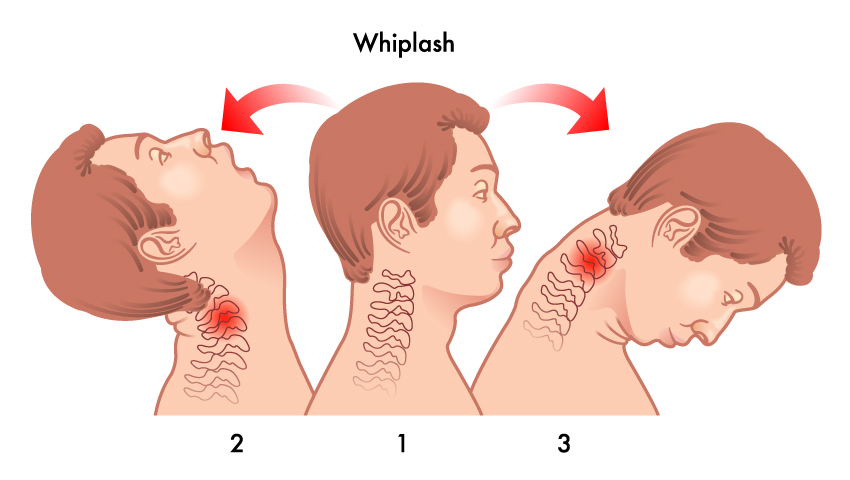 How Whiplash Occurs