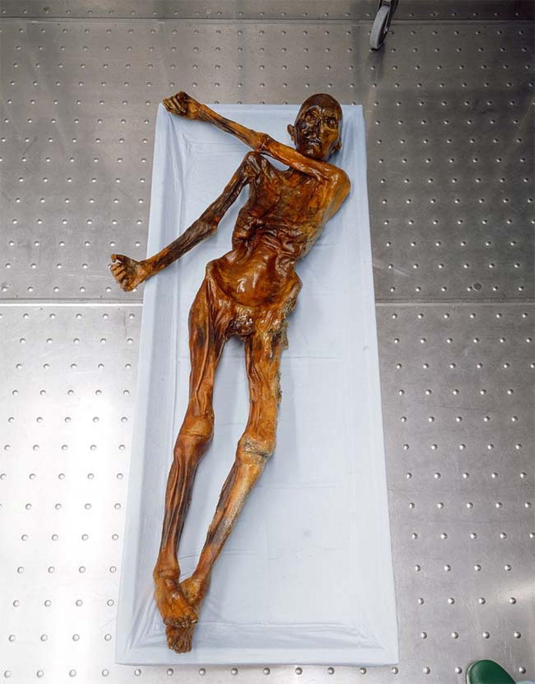 Ötzi-momie