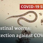 Coronavirus: Are parasitic worms accountable for low fatality charges in Africa? | COVID-19 Particular