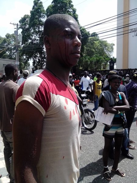 man beaten by dominican pokice for complaining about problems with regularization process
