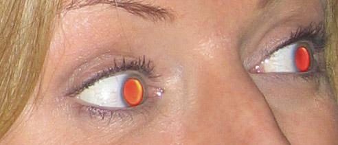 Severe-Red-Eye