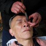 Liu nettoie les yeux avec un rasoir