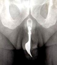 Radiographie montrant la fourchette coincée