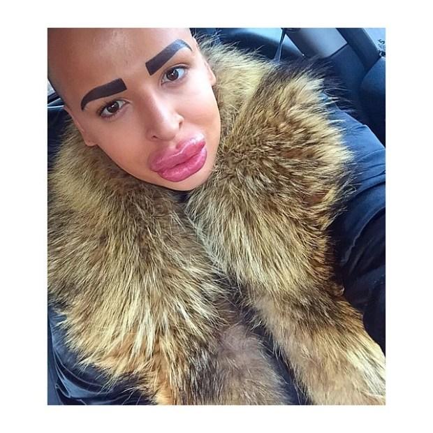 Il paie 150.000$ pour ressembler à Kim Kardashian