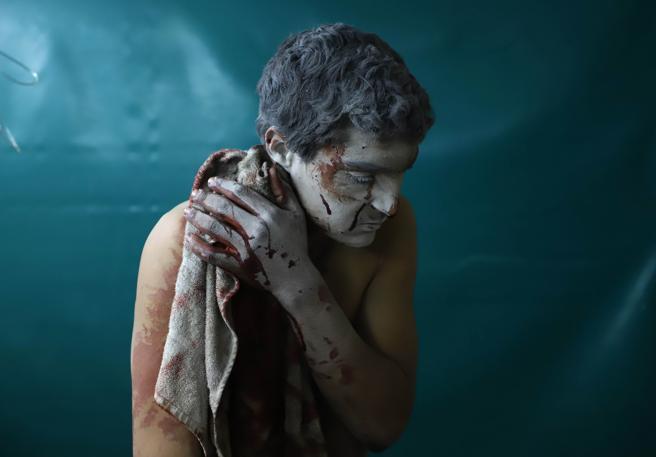 Un herido sirio espera tratamiento en una clínica improvisada durante los ataques aéreos del gobierno sirio en Zamalka, en Guta Oriental