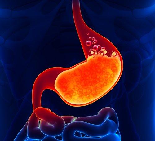reflujo ácido acidez estomacal