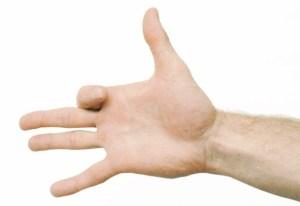 dor de artrite nas mãos dobra
