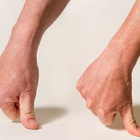 dor de artrite nas mãos achatar dedo