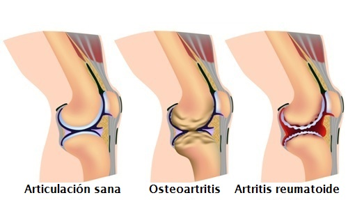 dolor-de-rodillas-tipos-de-artritis-en-rodilla